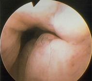 Διαγνωστική υστεροσκόπηση - Καρκίνωμα