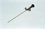 Σχήμα 2. Διαγνωστικό υστεροσκόπιο απλής ροής με ένδοσκόπιο 3 mm πλαγίας όρασης 30o και 4mm εξωτερική θήκη (Olympus, Αμβούργο, Γερμανία)
