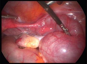 salpingectomy2