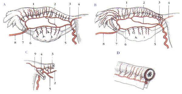 salpingectomy4