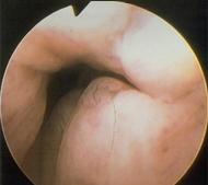 Διαγνωστική υστεροσκόπηση - ectocervix