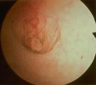 Διαγνωστική υστεροσκόπηση - Πολύποδας κέρατος