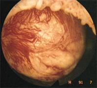 Σχήμα 2.  Υποβλεννογόνιο ινομύωμα με τυπικά συμπιεσμένα και  διατεταμένα αγγεία της κάψας.
