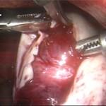 Προσεκτική αποκόλληση του φυσιολογικού ωοθηκικού ιστού και αιμόσταση.